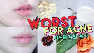 Download WORST FOODS FOR ACNE! • Get Rid of Hormonal Acne Naturally 🌴 Liah Yoo Video