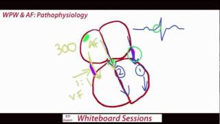 Download EDExam Whiteboard Session 1 - WPW & AF Video