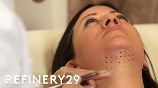 Download Kybella Double Chin Removal Treatment Up Close | Macro Beauty | Refinery29 Video