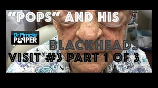 Download This is ″Pop's″ most recent visit, getting his blackheads extracted. Part 1 Video