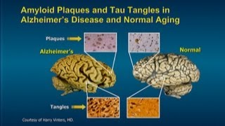 Download Alzheimer's Prevention Program: Keep Your Brain Healthy for the Rest of Your Life Video