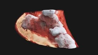 Download First 3D colour X-ray of a Human using CERN technology Video