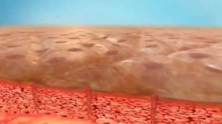 Download How Pixel Laser Skin Resurfacing Works Video