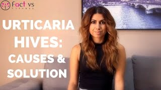 Download Urticaria Hives: Causes and Solution Video