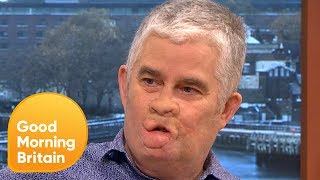 Download Sepsis Survivor Opens Up About His 18 Year Story | Good Morning Britain Video