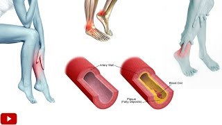 Download Exercises For Improving Blood Circulation In Legs - by Dr Sam Robbins Video
