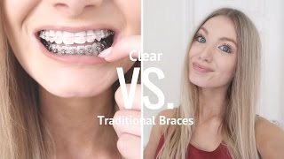 Download Clear VS Metal Braces | Are Clear Braces Worth It? Video