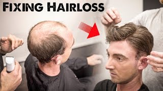 Download Mens Hairloss Treatment 2.0 | Amazing Hairstyle Transformation - Does it Work? | BluMaan 2018 Video