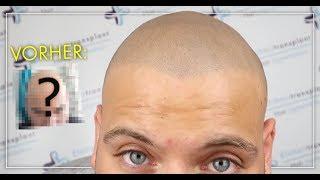 Download Haarpigmentierung Erfahrung - Ergebnis nach 2 Jahren! Kurzhaarfrisur statt Haartransplantation Video
