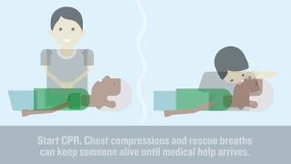 Download What's the difference between a heart attack and a cardiac arrest? Video