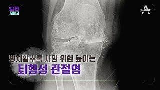 Download [교양] 닥터 지바고 260회 190916 방치할수록 사망 위험 높이는 퇴행성 관절염 Video