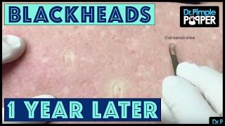 Download MORE Back Blackheads from Heaven! Video