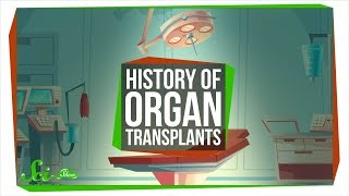 Download The Messy Path to the First Successful Organ Transplants Video