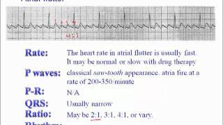 Download ECG: Atrial Flutter Video