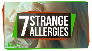 Download 7 of the Strangest Allergies Video