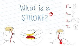 Download What is a Stroke? Video