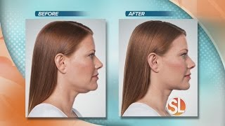 Download North Valley Plastic Surgery offers full correction treatments with no surgery, no downtime Video
