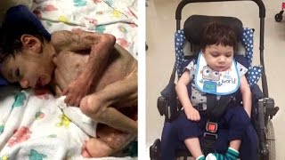 Download Starving 8-Year-Old Orphan Who Weighed Only 8 Lbs. Now Looks Unrecognizable Video