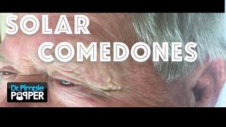 Download Solar comedones extracted, aka Favre Racouchot Video