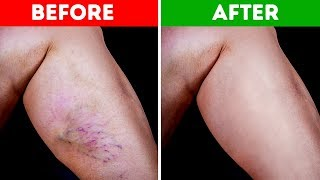 Download 10 Natural Ways to Get Rid of Varicose Veins and Increase Blood Flow Video