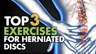Download Top 3 Exercises For Herniated Discs Video