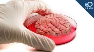 Download Mini Human ″Brain″ Grown In Lab Video