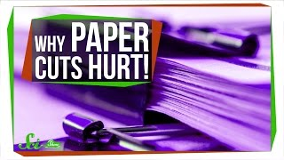 Download Why Are Paper Cuts So Painful? Video