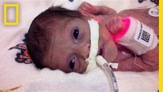 Download Born 4 Months Early, This Tiny Survivor Beats the Odds | Short Film Showcase Video