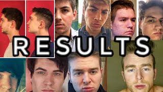 Download Mewing testimonials (ACHIEVED RESULTS) Video
