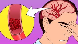 Download A Scientific Way to Cure a Headache Without Painkillers Video
