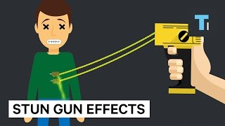 Download Here's how much damage a stun gun does to your brain and body Video