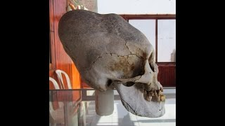 Download Newly Discovered Elongated Skulls In Paracas Peru Video
