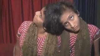Download India's famous conjoined twins, Saba and Farah, win court battle for financial aid Video