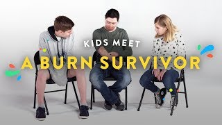 Download Kids Meet a Burn Survivor   Kids Meet   HiHo Kids Video