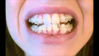 Download My ″Six Month Smiles″ Braces Journey Video