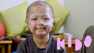 Download Iziyah - Kids with Disabilities Video