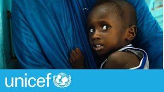 Download Malnutrition in Mali | UNICEF Video