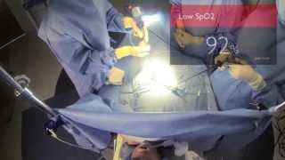 Download Google Glass proof of concept - Philips Healthcare Video