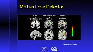 Download Brain Scans: Can They Really Tell Us if You're Lying or in Love? Video