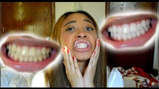 Download How To Whiten Teeth in 5 Minutes! (Works 100%) Video