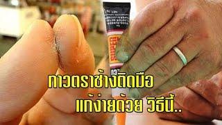 Download 7 เคล็ดลับ!!ละลายกาว(glue)ตราช้าง ที่ติดอยุ่ให้หลุดออกง่ายๆ ต้องลอง!# Healthy Natural นานา สมุนไพร Video