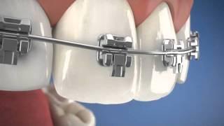 Download Adult braces sydney castle hill call Multicare Dental Castle Hill 02 9659 1200 Video
