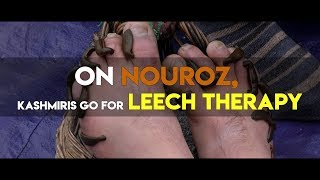 Download On Nouroz, Kashmiris go for leech therapy Video