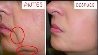 Download Quita las Arrugas de tu boca en 3 Días!! Remedio Casero para reducir arrugas Video