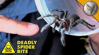 Download DEADLIEST SPIDER BITE! Video