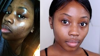 Download HOW I GOT RID OF MY ACNE|FAST+CHEAP& NATURAL| MORNING SKIN ROUTINE | LIZZIE LOVES Video