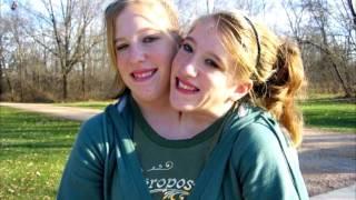 Download Невероятная жизнь сиамских близнецов Video