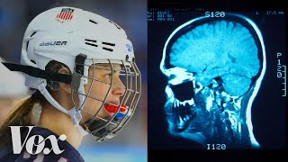 Download Why women's ice hockey has a higher concussion rate than football Video