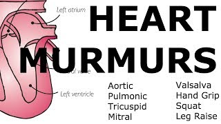 Download Heart Murmurs | Locations, Maneuvers, Buzzwords Video