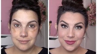 Download FULL COVERAGE Makeup for Melasma & Discoloration Video
